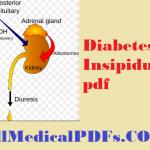 Diabetes Insipidus pdf