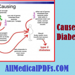 Download Causes Of Diabetes Pdf